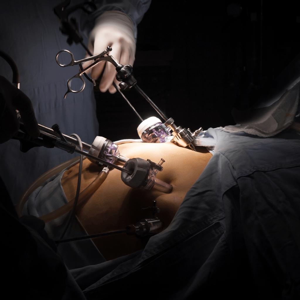 Бариатрия – первый шаг, на пути к стройной фигуре